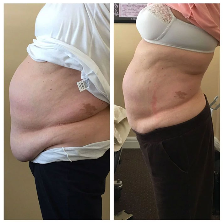 Picture of FAT Loss