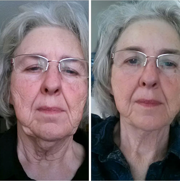 Picture of FACE LIFT